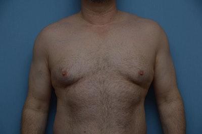 Gynecomastia Gallery - Patient 6389435 - Image 1