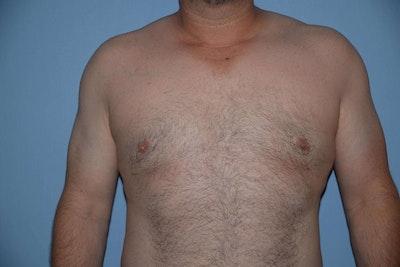 Gynecomastia Gallery - Patient 6389435 - Image 2