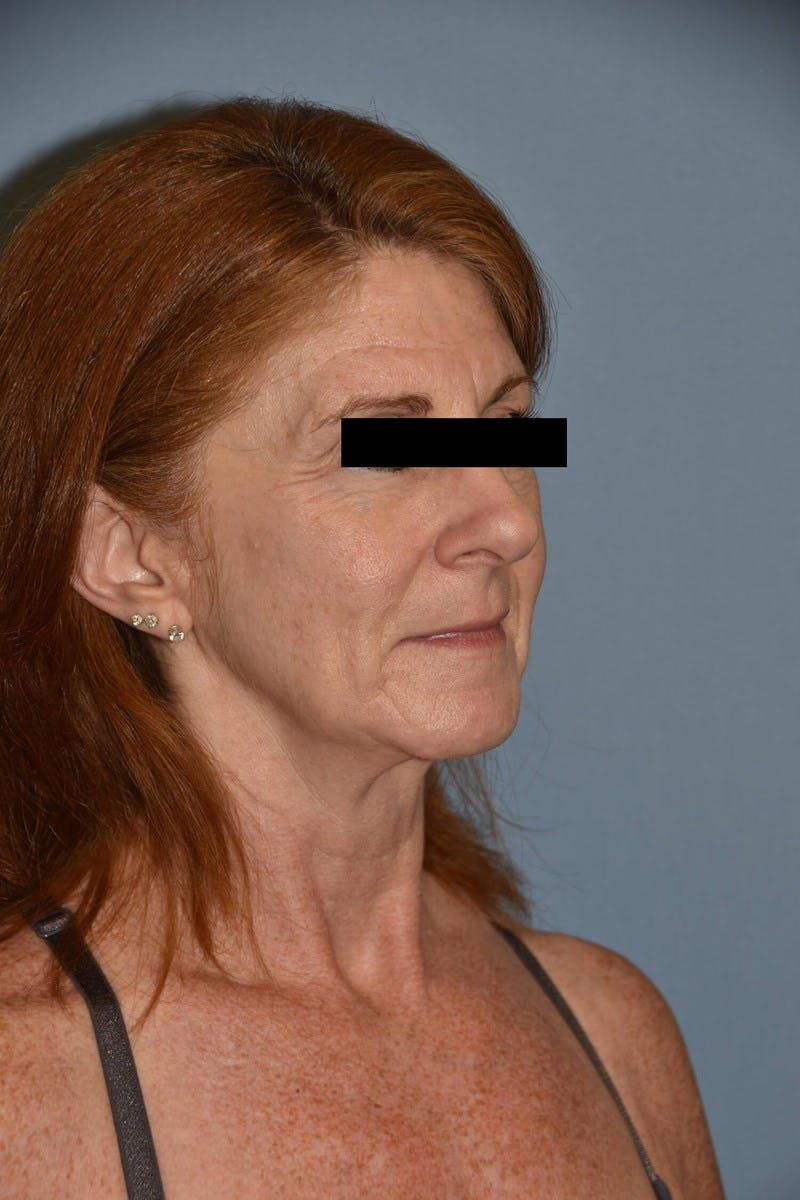 Facial Fat Grafting Gallery - Patient 6389439 - Image 1
