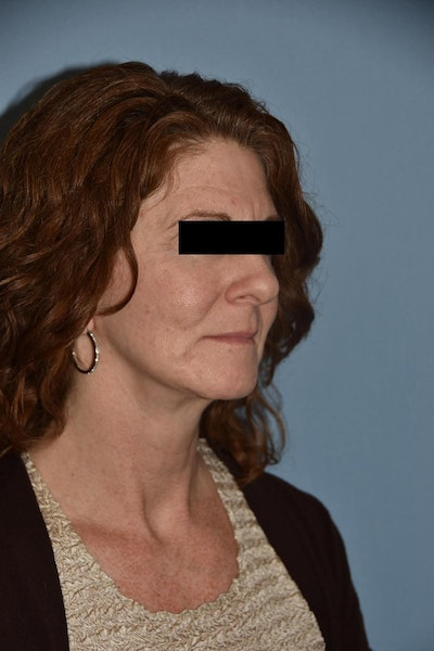 Facial Fat Grafting Gallery - Patient 6389439 - Image 2