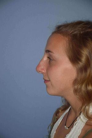 Nonsurgical Rhinoplasty