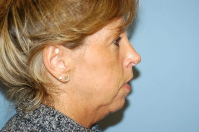 Chin Augmentation Gallery - Patient 6389455 - Image 1