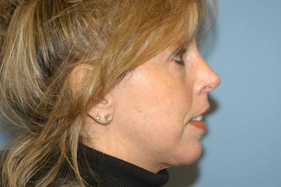 Chin Augmentation Gallery - Patient 6389455 - Image 2