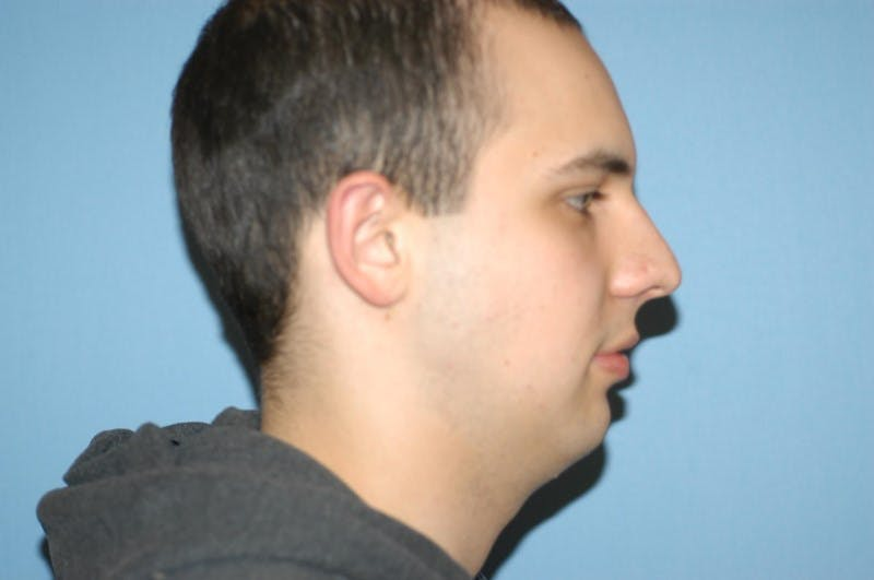 Chin Augmentation Gallery - Patient 6389456 - Image 1
