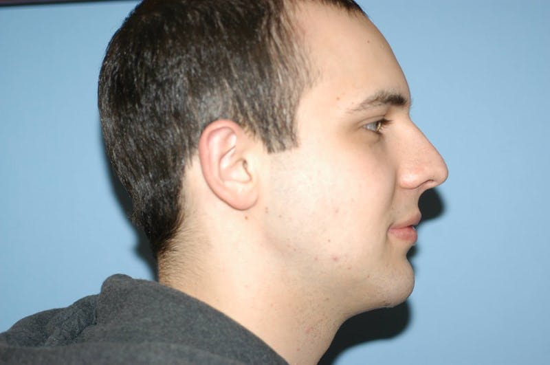 Chin Augmentation Gallery - Patient 6389456 - Image 2