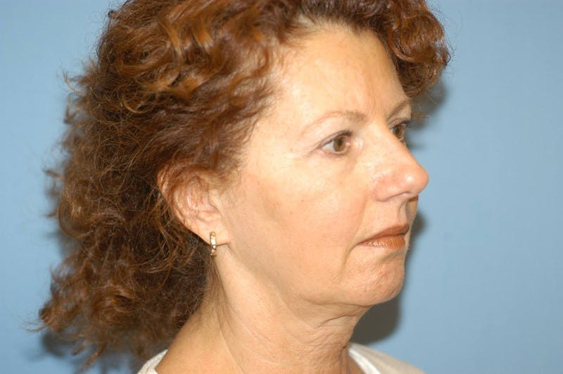 Chin Augmentation Gallery - Patient 6389460 - Image 1