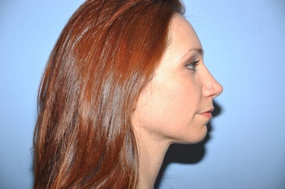 Chin Augmentation Gallery - Patient 6389461 - Image 1