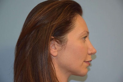 Chin Augmentation Gallery - Patient 6389461 - Image 2
