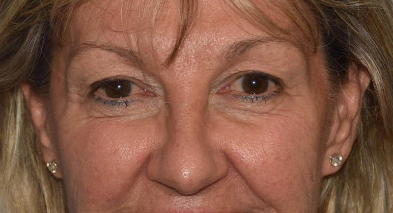Eyelid Lift Gallery - Patient 6389462 - Image 1