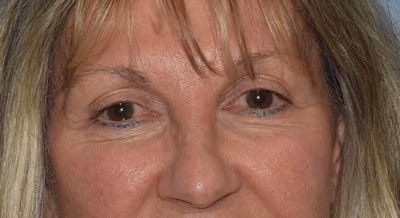 Eyelid Lift Gallery - Patient 6389462 - Image 2