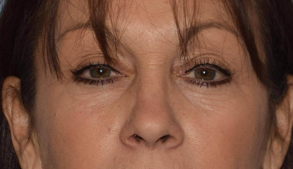 Before and After Blepharoplasty in Long Island