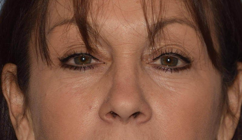 Eyelid Lift Gallery - Patient 6389463 - Image 1