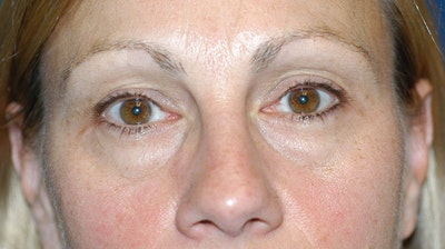 Eyelid Lift Gallery - Patient 6389466 - Image 1