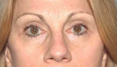 Eyelid Lift Gallery - Patient 6389466 - Image 2