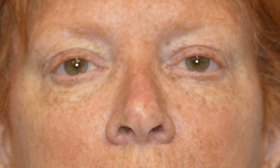 Eyelid Lift Gallery - Patient 6389469 - Image 1