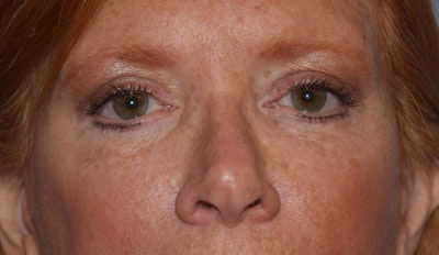 Eyelid Lift Gallery - Patient 6389469 - Image 2