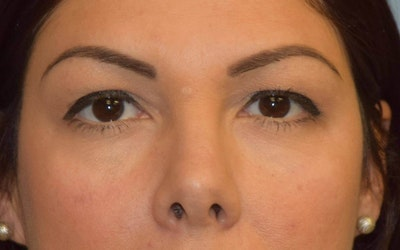 Eyelid Lift Gallery - Patient 6389472 - Image 1
