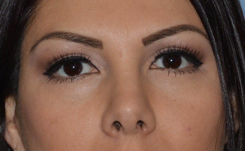 Eyelid Lift Gallery - Patient 6389472 - Image 2