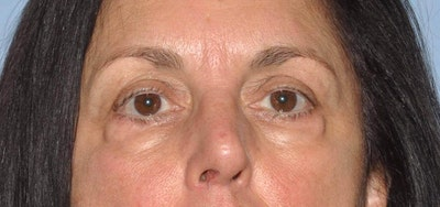 Eyelid Lift Gallery - Patient 6389473 - Image 1