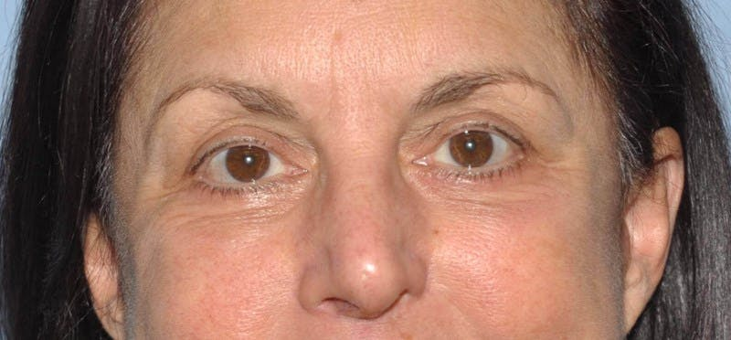 Eyelid Lift Gallery - Patient 6389473 - Image 2