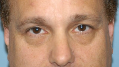 Eyelid Lift Gallery - Patient 6389474 - Image 1