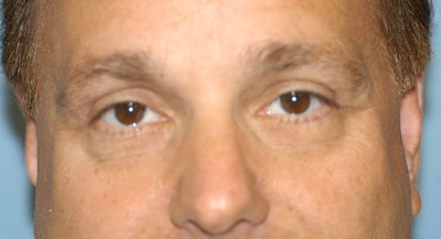 Eyelid Lift Gallery - Patient 6389474 - Image 2