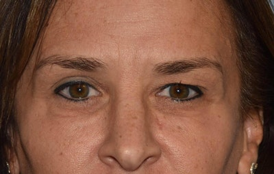 Eyelid Lift Gallery - Patient 6389482 - Image 1