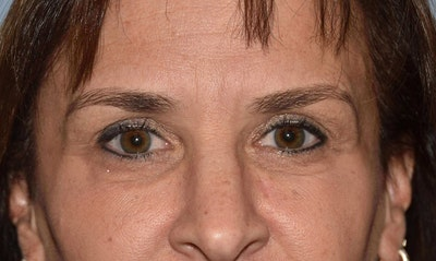 Eyelid Lift Gallery - Patient 6389482 - Image 2