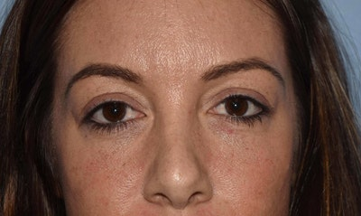 Eyelid Lift Gallery - Patient 6389485 - Image 1