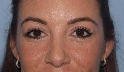 Eyelid Lift Gallery - Patient 6389485 - Image 2