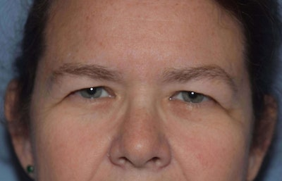 Eyelid Lift Gallery - Patient 6389486 - Image 1