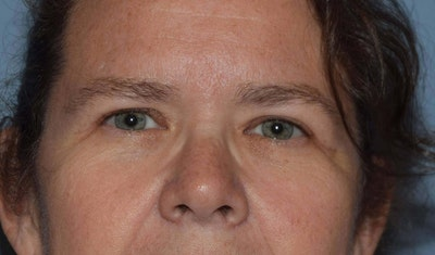 Eyelid Lift Gallery - Patient 6389486 - Image 2