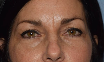 Eyelid Lift Gallery - Patient 6389487 - Image 1