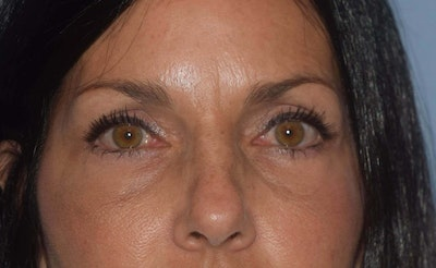 Eyelid Lift Gallery - Patient 6389487 - Image 2