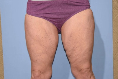 Thigh Lift Gallery - Patient 6389547 - Image 1
