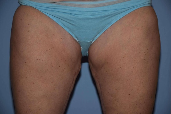 Long Island Thigh Lift patient before and after