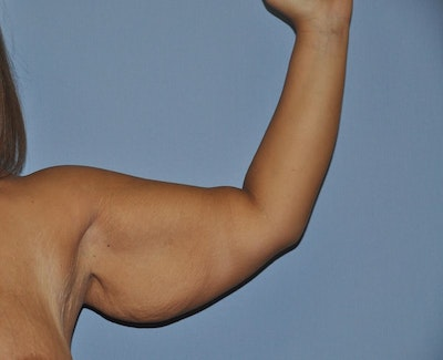 Arm Lift Gallery - Patient 6389551 - Image 1