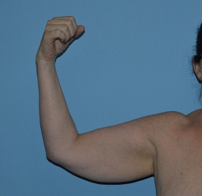 Arm Lift Gallery - Patient 6389552 - Image 1