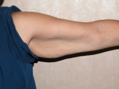 Arm Lift Gallery - Patient 6389553 - Image 1