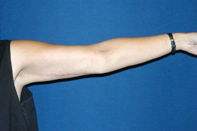 Arm Lift Gallery - Patient 6389553 - Image 2