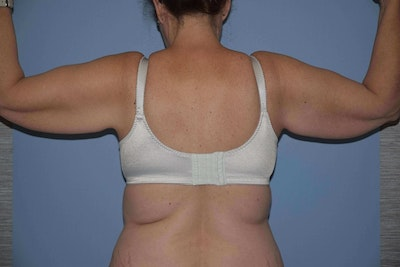 Arm Lift Gallery - Patient 6389556 - Image 1