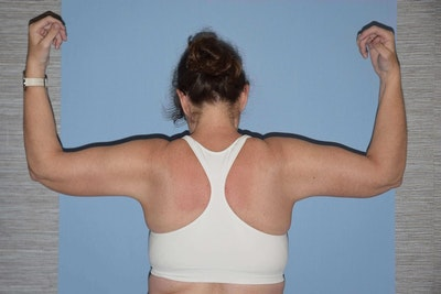 Arm Lift Gallery - Patient 6389556 - Image 2