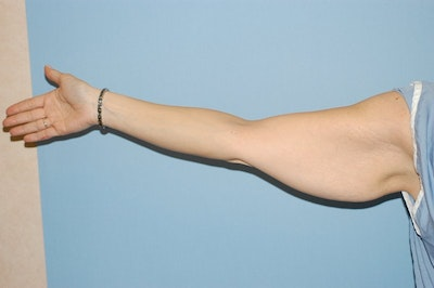 Arm Lift Gallery - Patient 6389559 - Image 1