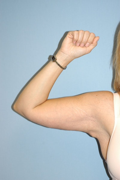 Arm Lift Gallery - Patient 6389559 - Image 2