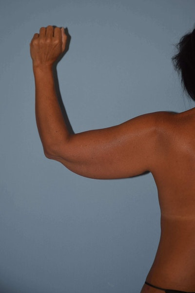 Arm Lift Gallery - Patient 6389570 - Image 1