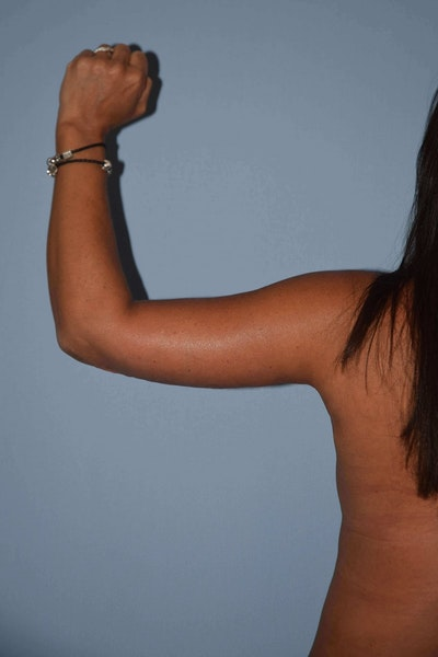 Arm Lift Gallery - Patient 6389570 - Image 2