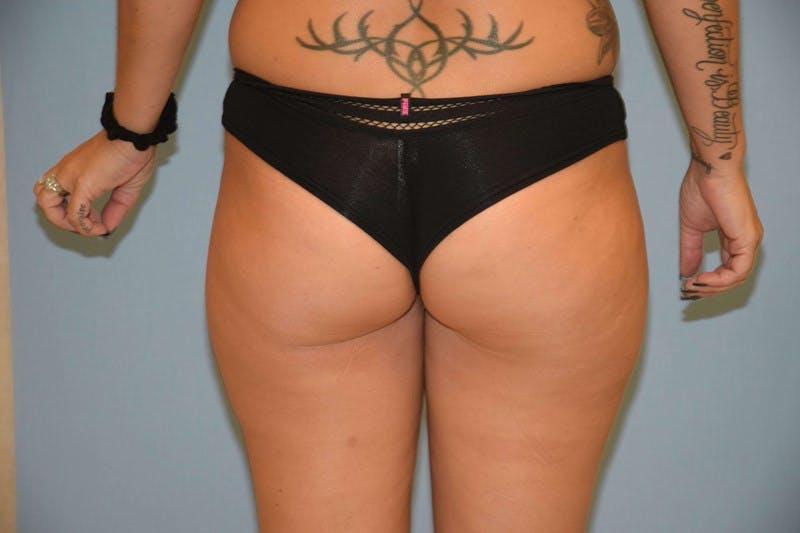 Brazilian Butt Lift Gallery - Patient 6389572 - Image 1