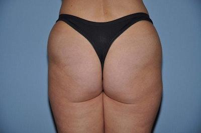 Brazilian Butt Lift Gallery - Patient 6389573 - Image 1