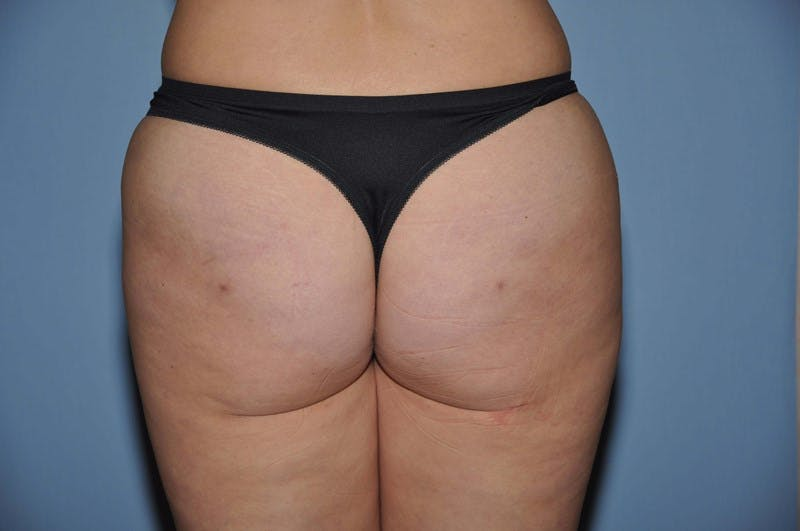 Brazilian Butt Lift Gallery - Patient 6389573 - Image 2