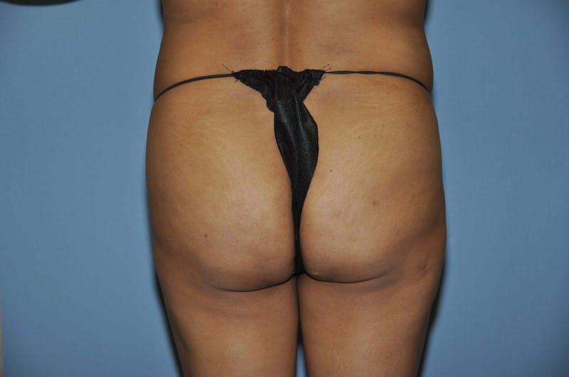 Brazilian Butt Lift Gallery - Patient 6389575 - Image 1